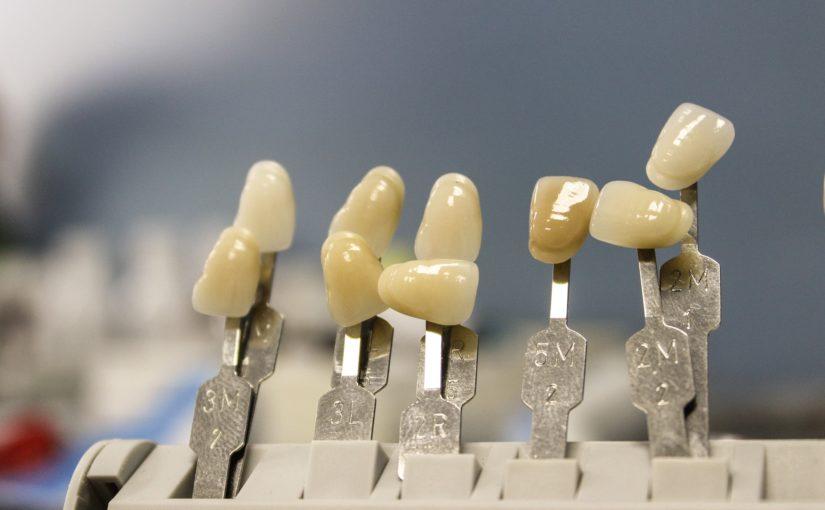 Ładne zdrowe zęby także świetny prześliczny uśmieszek to powód do zadowolenia.